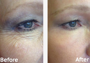 CO2 Laser Skin Resurfacing Before and After, St. George, UT