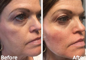 Radiesse® Before and After, St. George, UT