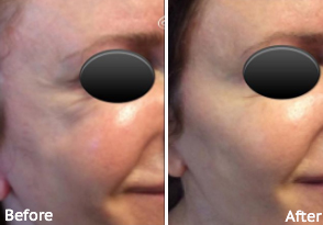 JUVÉDERM VOLUMA® XC Before and After, St. George, UT