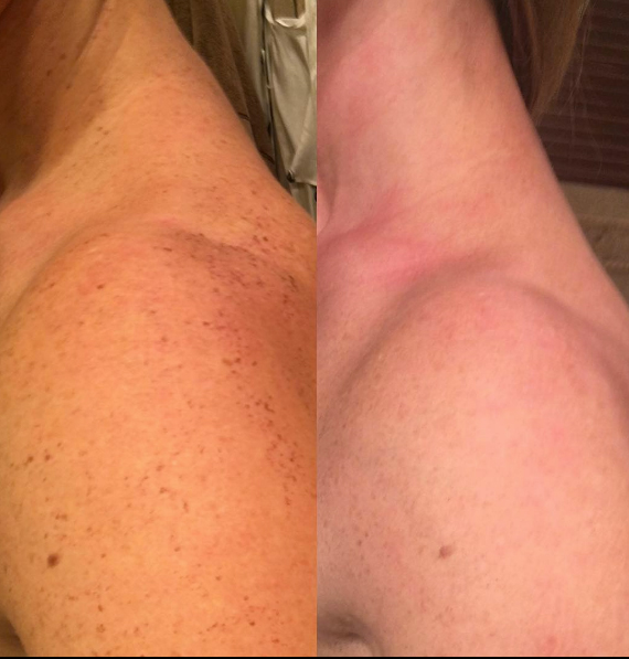 IPL Treatment Before and After, St. George, UT