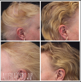 PRP Hair Restoration Before and After, St. George, UT