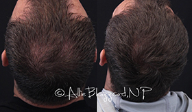 Both title tags should be: PRP Hair Restoration Before and After, St. George, UT