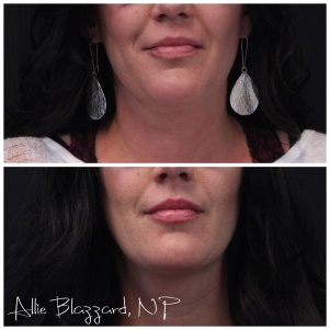 St. George UT Double Chin Treatment