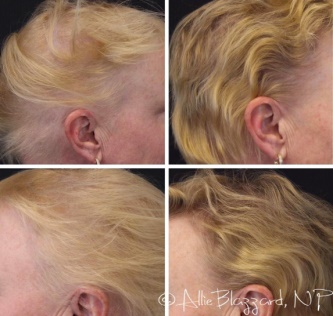 St. George UT Hair Loss Treatment