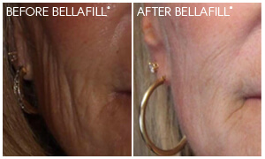 Bellafill® Gallery