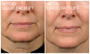 Liquid Facelift Gallery