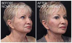 NovaThreads® Facial Rejuvenation Gallery