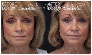 BOTOX® Cosmetic Gallery