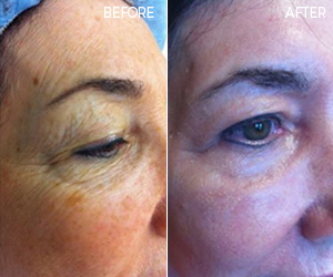 CO2 LASER RESURFACING PATIENT