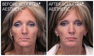 Sculptra® Aesthetic Gallery