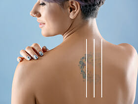 laser tattoo removal St. George, UT