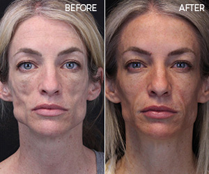 SCULPTRA® AESTHETIC PATIENT