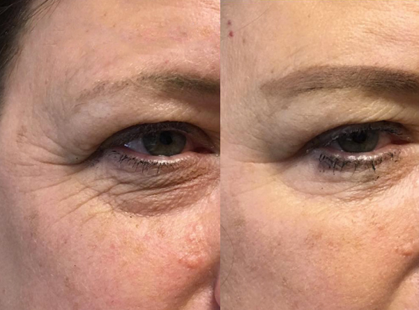 BOTOX® Cosmetic Before and After, St. George, UT