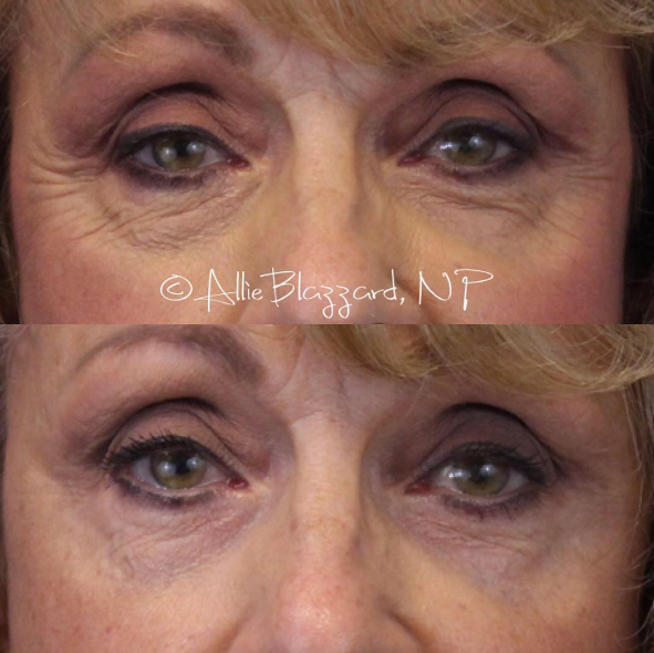 BOTOX® Before and After, ST. George, UT