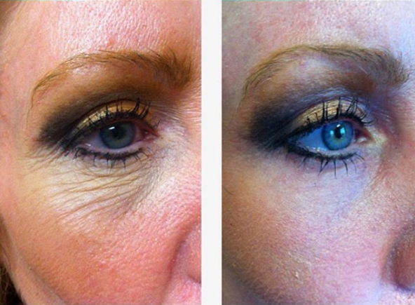 CO2 Laser Resurfacing Before and After, St. George, UT