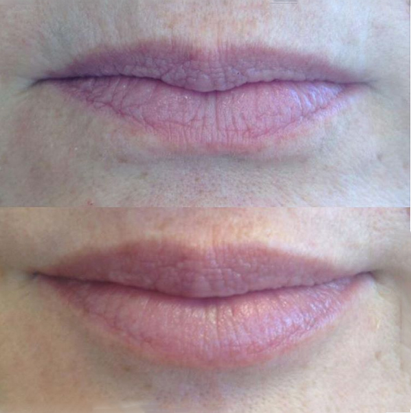 Juvéderm® Before and after, St. George, U