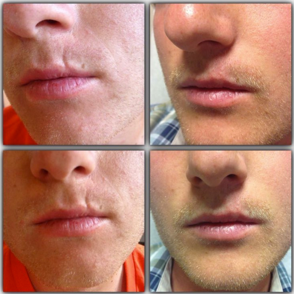 Juvéderm® Before and After, St. George, UT