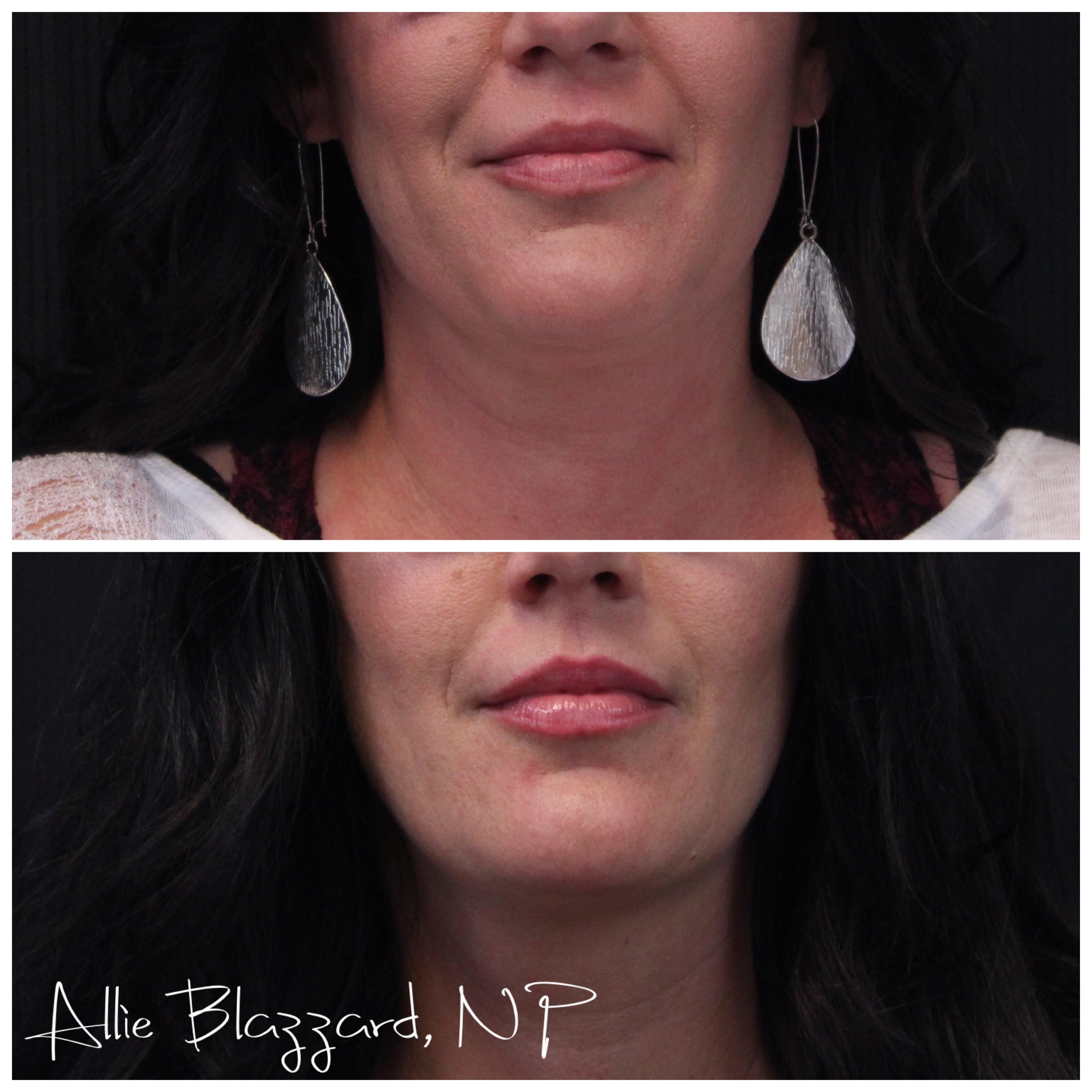 Kybella® Before and After, St. George, UT