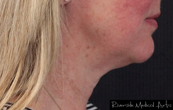 Kybella® After, St. George, UT
