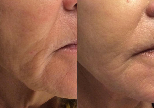 Liquid Facelift Before and After, St. George, UT
