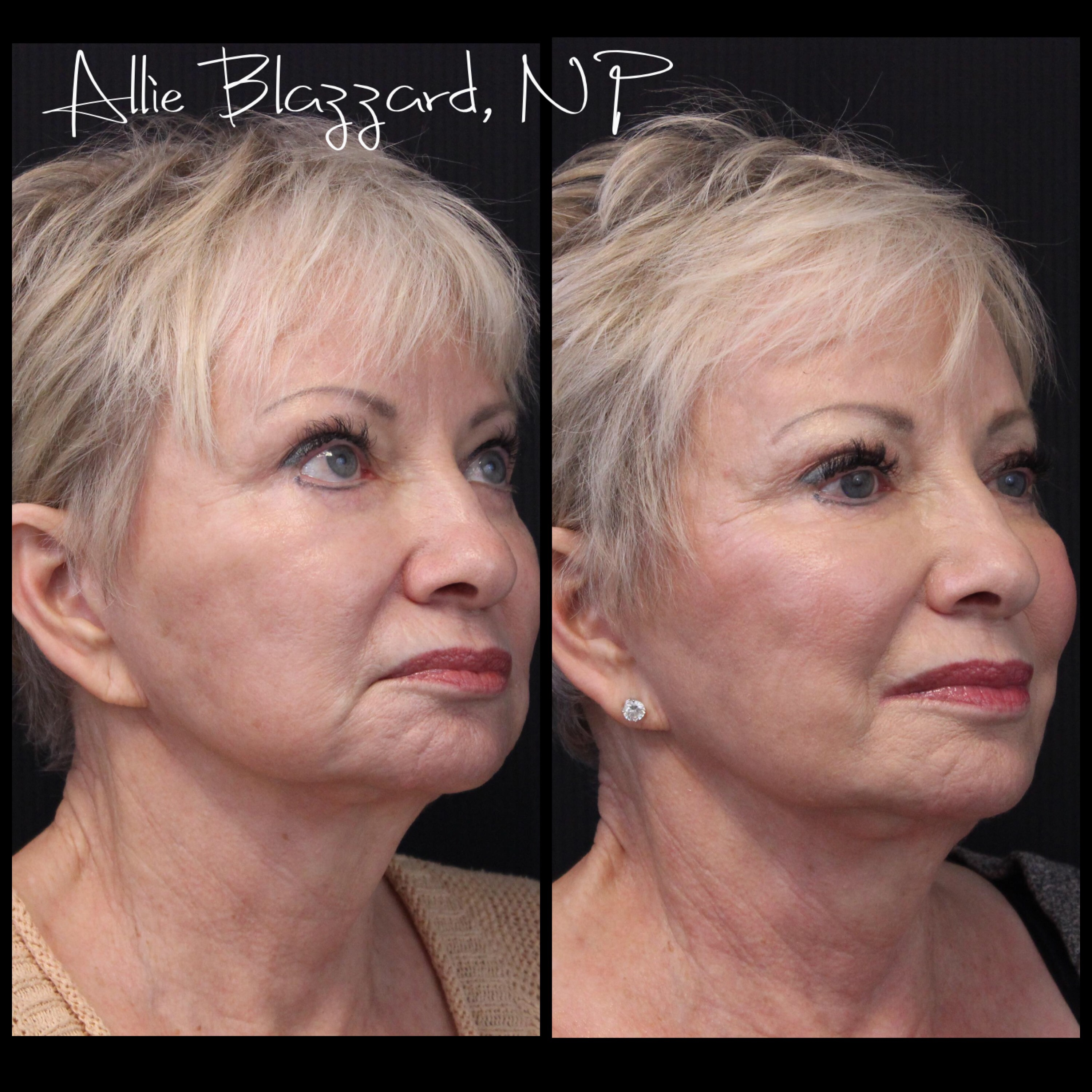 BOTOX® Cosmetic Before, St. George, UT