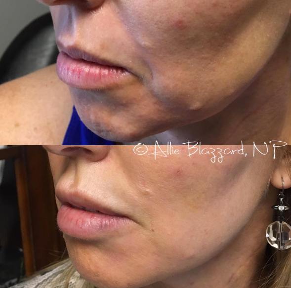 Radiesse® Before & After, St. George, UT