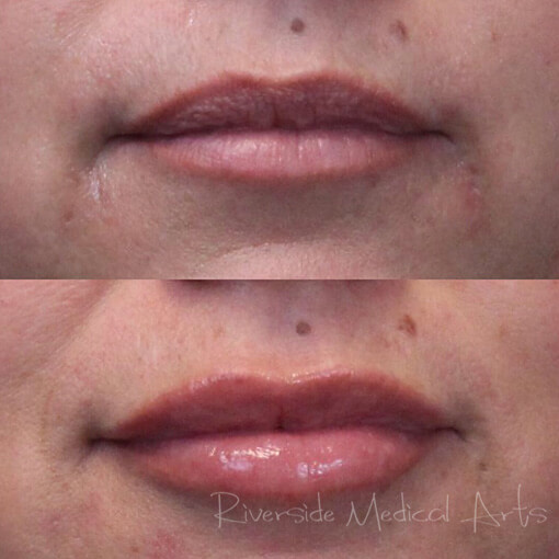 Restylane® Defyne Before and After, St. George, UT