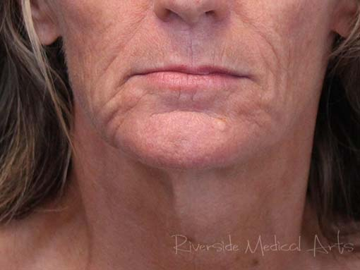 Restylane® Refyne Before, St. George, UT
