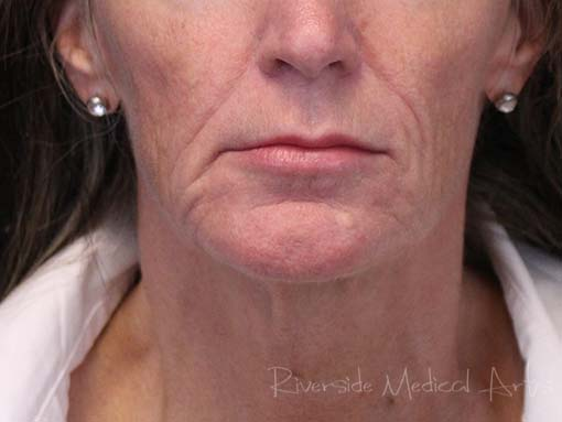 Restylane® Refyne After, St. George, UT