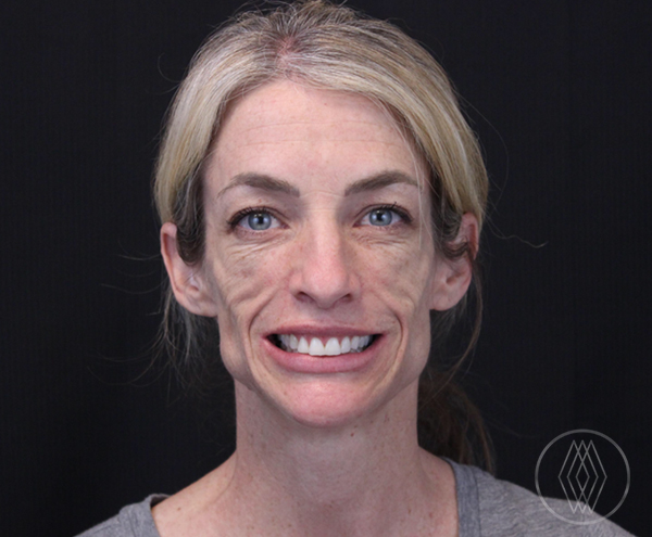 Sculptra® Aesthetic After, St. George, UT