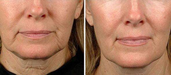 Ultherapy® Before and After, St. George, UT