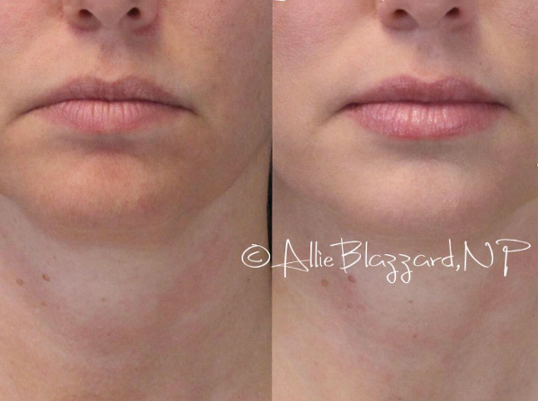 Juvéderm® Volbella® XC Before and After, St. George, UT