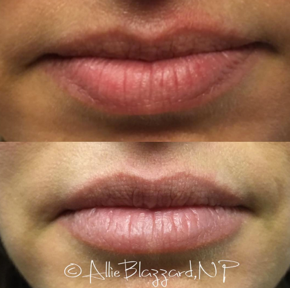 Juvéderm VOLBELLA® XC Before and After, St. George, UT