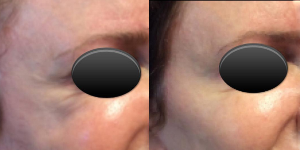 Juvéderm Voluma®,Before and After, St. George, UT