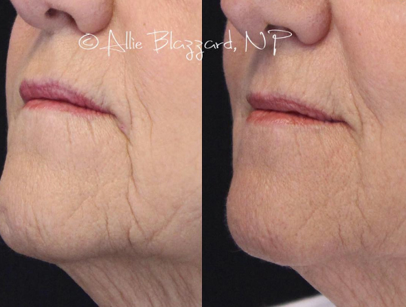 Juvéderm Voluma® Before and After, St. George, UT