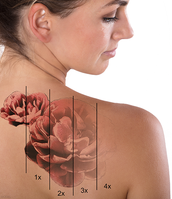 Tattoo Removal in St. George, UT